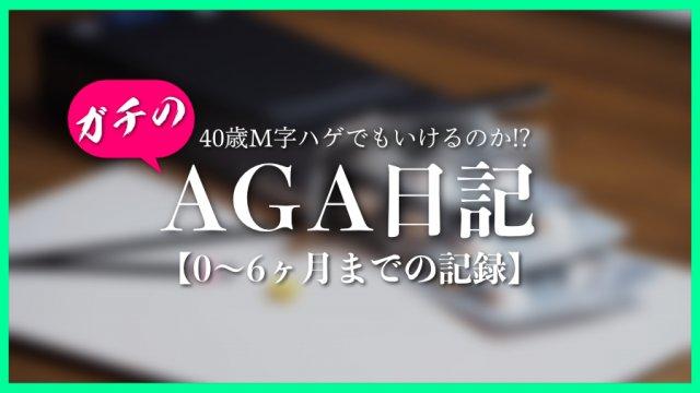 AGA日記0〜6ヶ月アイキャッチ