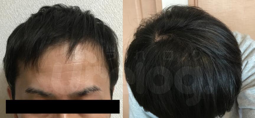 AGA治療1年6ヶ月目、正面・頭頂部の写真