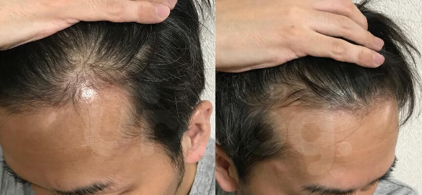 AGA治療1年6ヶ月目の生え際写真